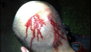 New photo shows George Zimmerman's bloodied head