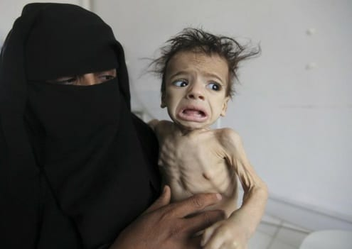 A Woman Held Her Child At A Feeding Center At Al-Sabyeen Hospital In San'a, Yemen, Monday