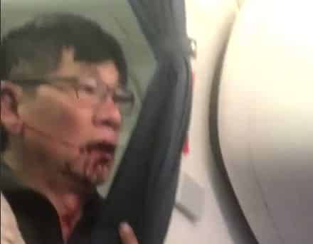 Man Aggressively Removed From Oversold United Flight Bleeding from Mouth VIDEO
